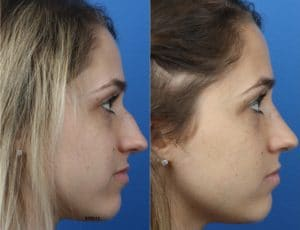 female rhinopalsaty patient's before and after photos in new york