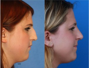 A female undergoes rhinoplasty surgery with Dr. Philip Miller and shows her before and after results.