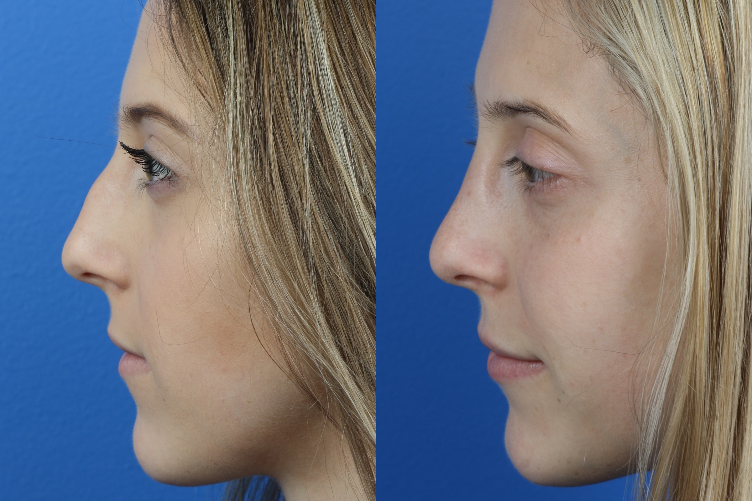 Profile view of before and after photos of a female patient who underwent surgical rhinoplasty to remove a hump and enhance the shape of the nose by Dr. Philip Miller.