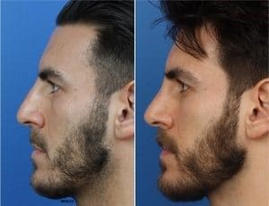 a before and after photo of a male rhinoplasty patient in new york