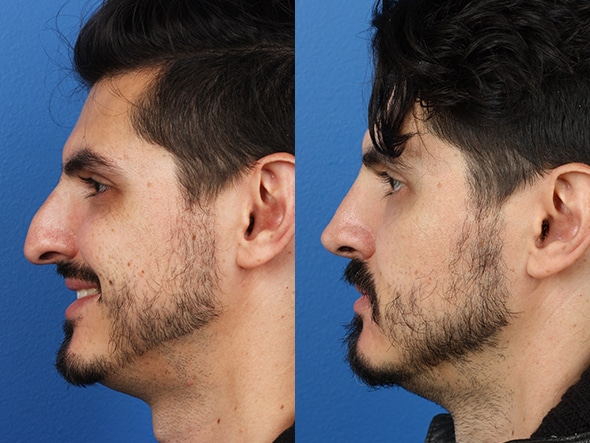Rhinoplasty patient before and after results in new york