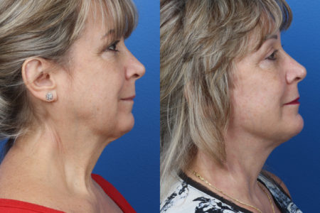 necklift surgery before and after in new york, resulting in smoother skin and sharper jawline.