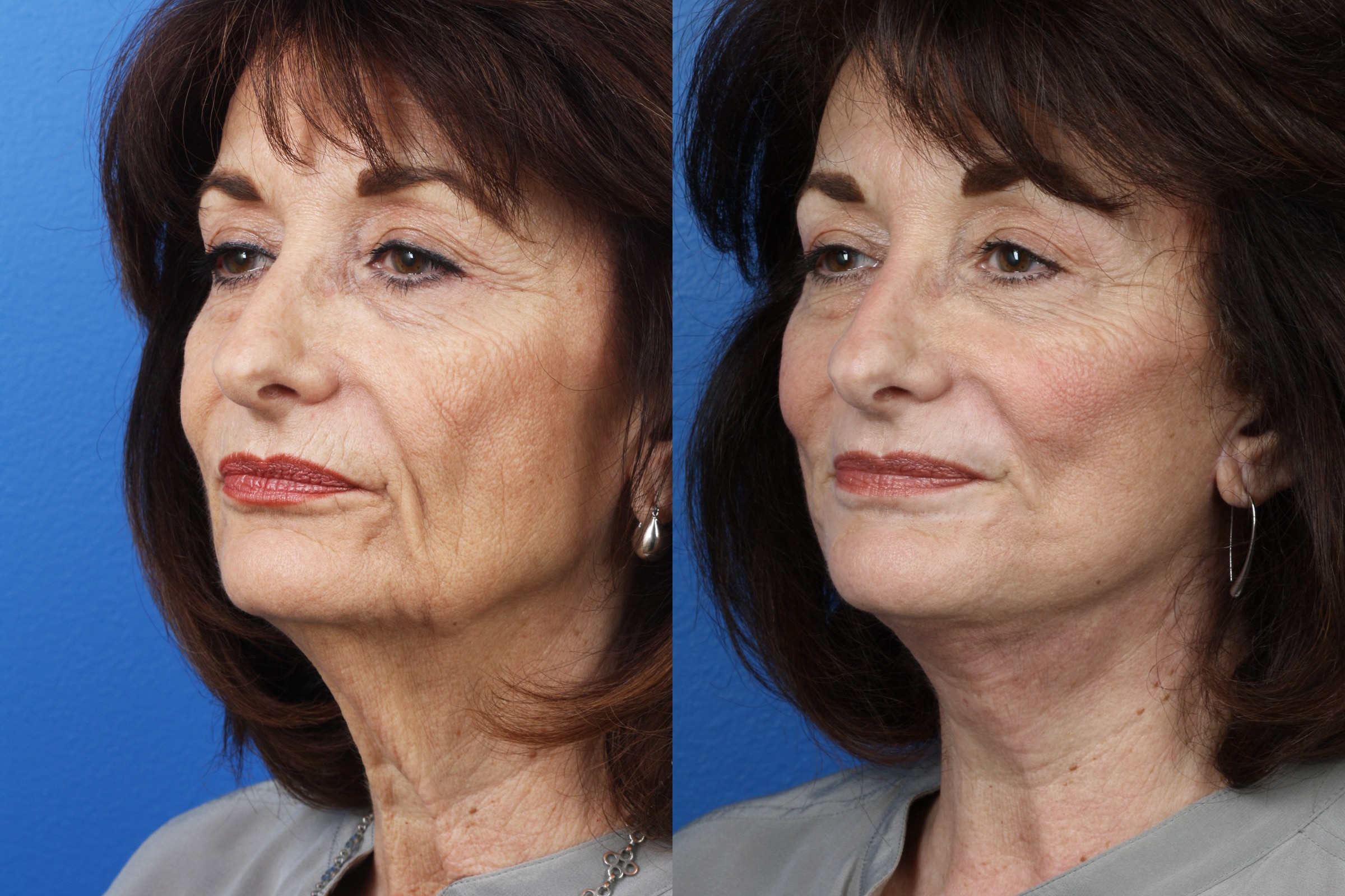 necklift to rejuvenate the neck and reduce loose skin in new york