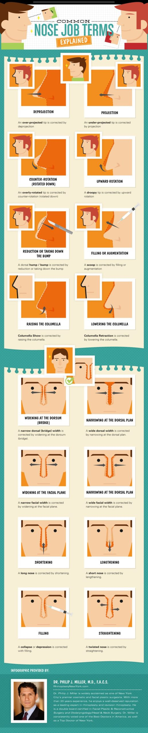 rhinoplasty infographic for surgery in new york