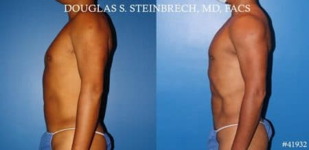 Body banking with fat transfer to the pecs and shoulders by Dr. Steinbrech