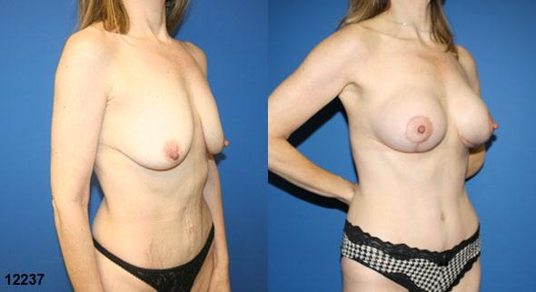 body makeover plastic surgery before and after in new york