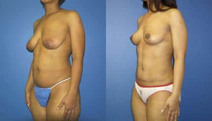 body contouring plastic surgery in new york