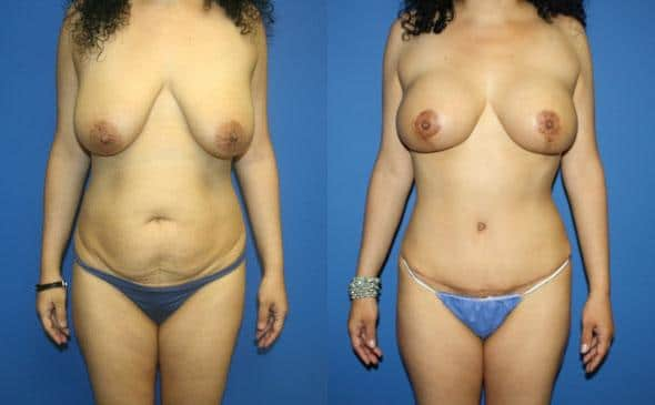 mommy makeover body contouring procedure in new york