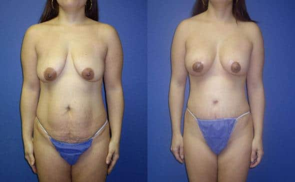 mommy makeover breast surgery in new york