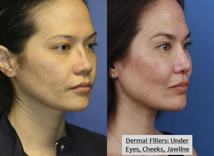 non-surgical facelift treatment in new york