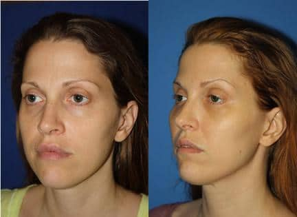 non-surgical skin tightening treatment in new york