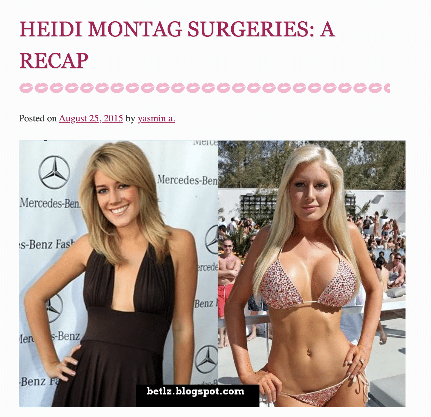 Heidi Montag Surgeries: A Recap