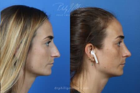 Rhinoplasty-right-to-correct-nasal-bridge-female-Miller