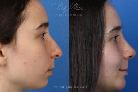 Rhinoplasty to straighten bridge and refine tip by Dr. Miller