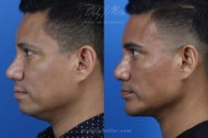 Neck-Tite and liposuction to remove submental fat and sculpt the neck by Dr. Miller. Surgery creates a more defined jawline and improves the facial profile in NYC, NY