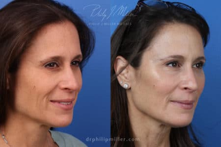 Miller Lift to treat facial wrinkles