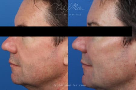 Miller Lift to treat facial wrinkles and sculpt jawline by Dr. Miller