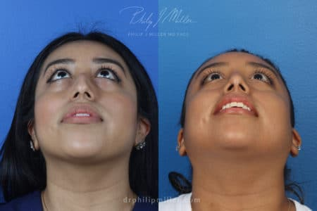 Rhinoplasty to remove bump from dorsal bridge by Dr. Miller