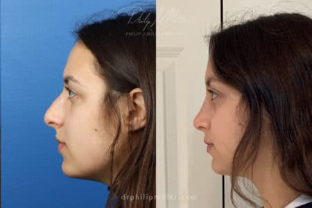 Rhinoplasty to straighten bridge and refine nasal tip by Dr. Miller