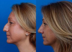female rhinoplasty results in new york