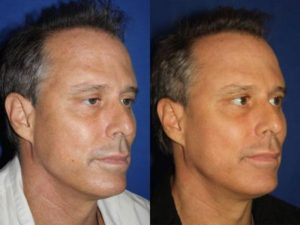 Laser Resurfacing to rejuvenate the skin in New York
