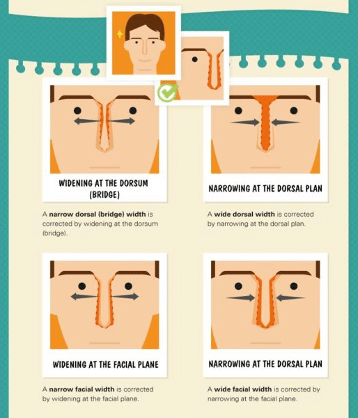 nose job treatment diagram by Dr. Philip Miller in New York