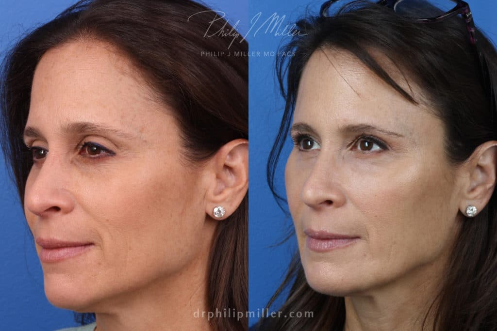 restylane filler for non-surgical facelift in new york