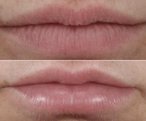restylane lip filler in new york, ny