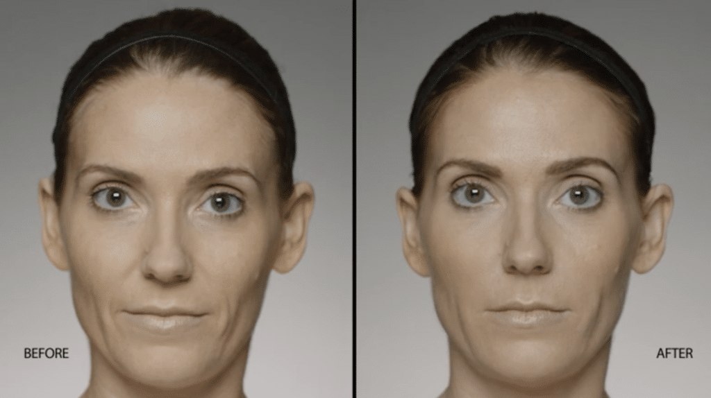 restylane facial filler injections in new york, ny