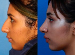rhinoplasty before and after photos in new york, ny