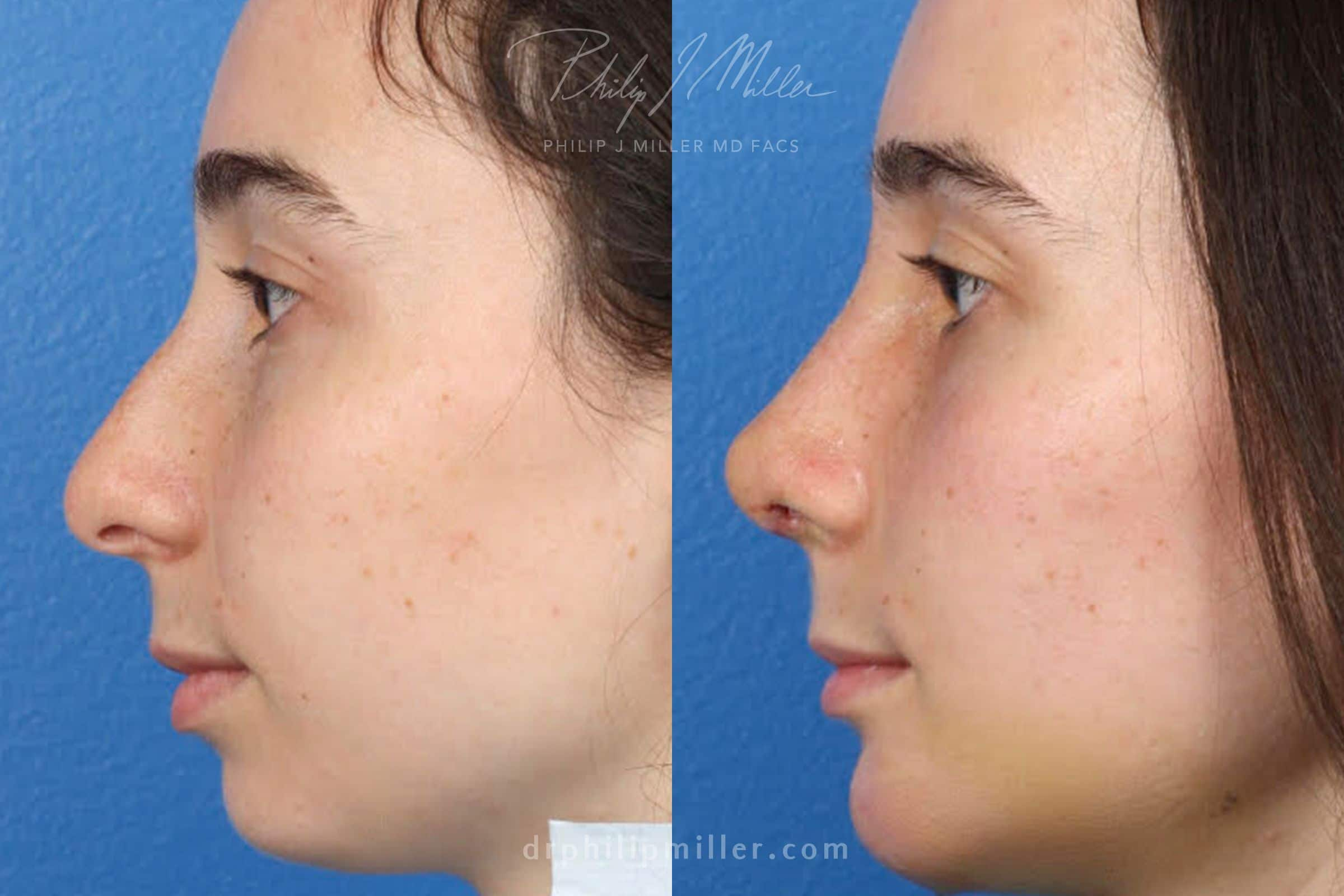 before and after rhinoplasty patient in new york