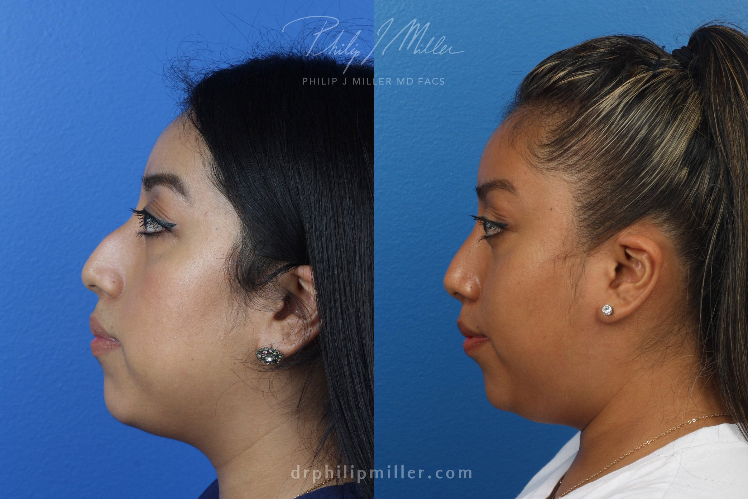 female rhinoplasty patient in new york