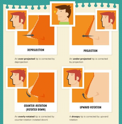 Rhinoplasty nose terms infographic by Dr. Philip Miller in New York