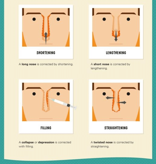Rhinoplasty treatment infographic by Dr. Philip Miller in New York