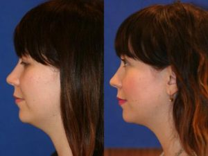 Neck liposuction to eliminate submental fat and improve the profile of a female patient by Dr. Miller. Surgery creates a smoother transition from the chin to the neck in NYC, NY