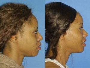 Image of African American woman after african american rhinoplasty in NYC, NY