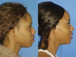 african american rhinoplasty in NYC, NY