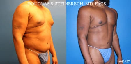 Liposuction and body banking to sculpt torso by Dr. Steinbrech