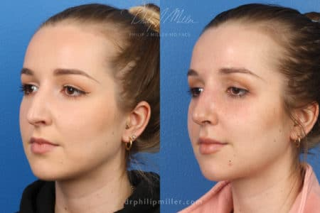 Rhinoplasty to remove hump from nasal bridge, one week later, by Dr. Miller