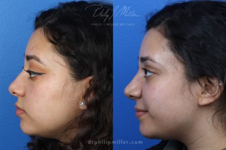 Rhinoplasty to enhance nose by Dr. Miller