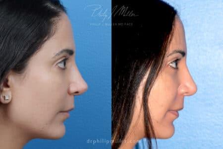 Rhinoplasty to refine nasal tip by Dr. Miller