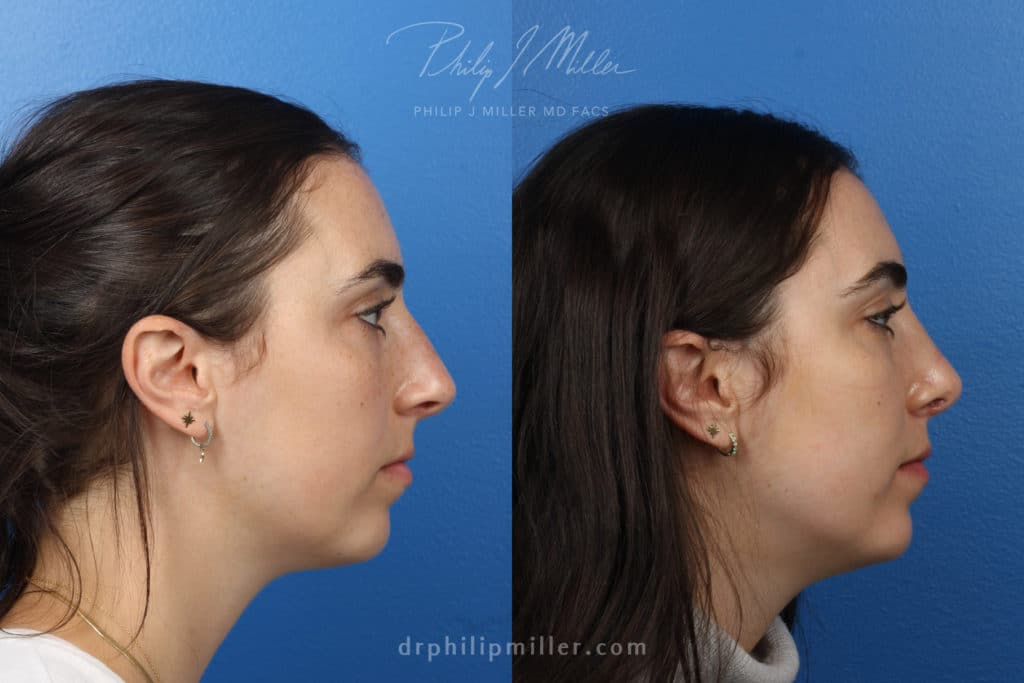 nose job results in Manhattan, NY