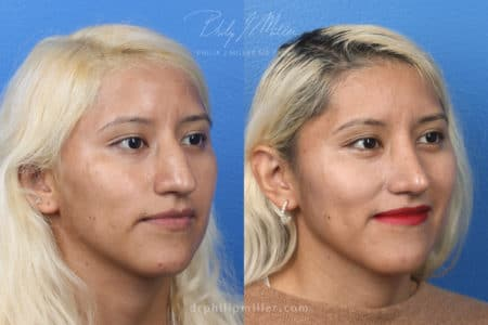 Rhinoplasty to remove hump from nasal bridge – 3 months post-op – by Dr. Miller