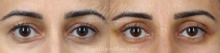 Upper blepharoplasty to treat eyelid hooding by Dr. Miller