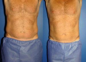 body treatments for men in New York, New York