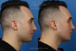 chin augmentation for men in Manhattan, NY
