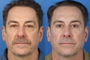 eye rejuvenation treatments for men in NYC, NY