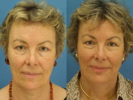 NY, NY facelift and neck lift results