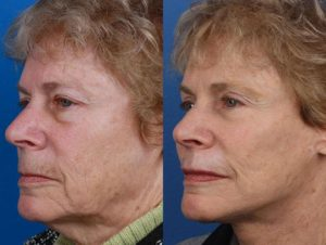 combination facelift and necklift results in NYC
