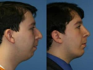 necklift surgery on male patient to contour the neck and jawline in NYC, NY